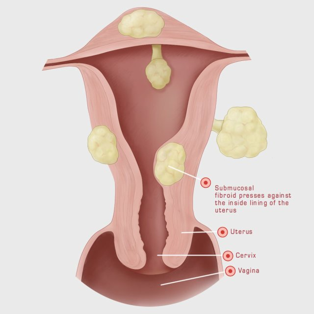 Fibroid symptoms heavy periods