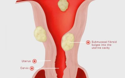 Fibroids Overview