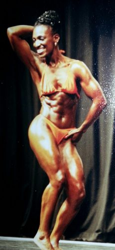 Uterine Fibroid Embolization bodybuilder