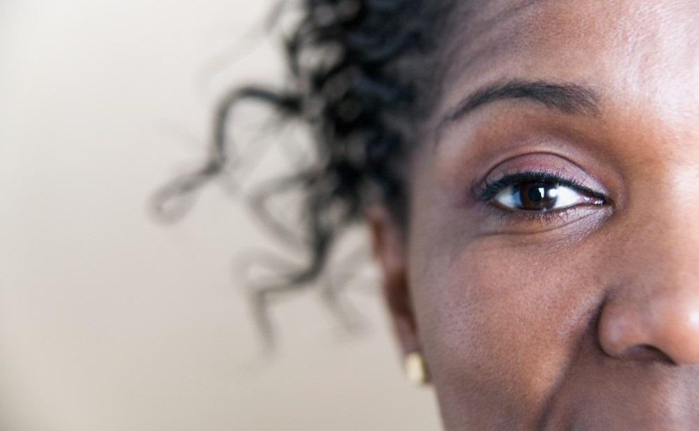 Fibroids in Black women