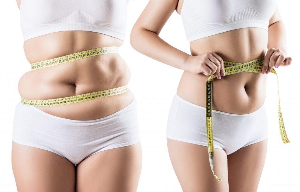 UFE recovery weight gain, enlarged uterus